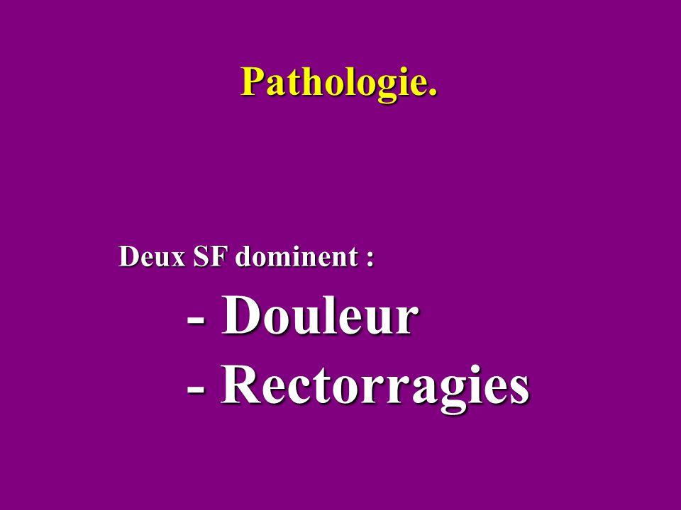 Deux SF dominent : - Douleur - Douleur - Rectorragies Pathologie.