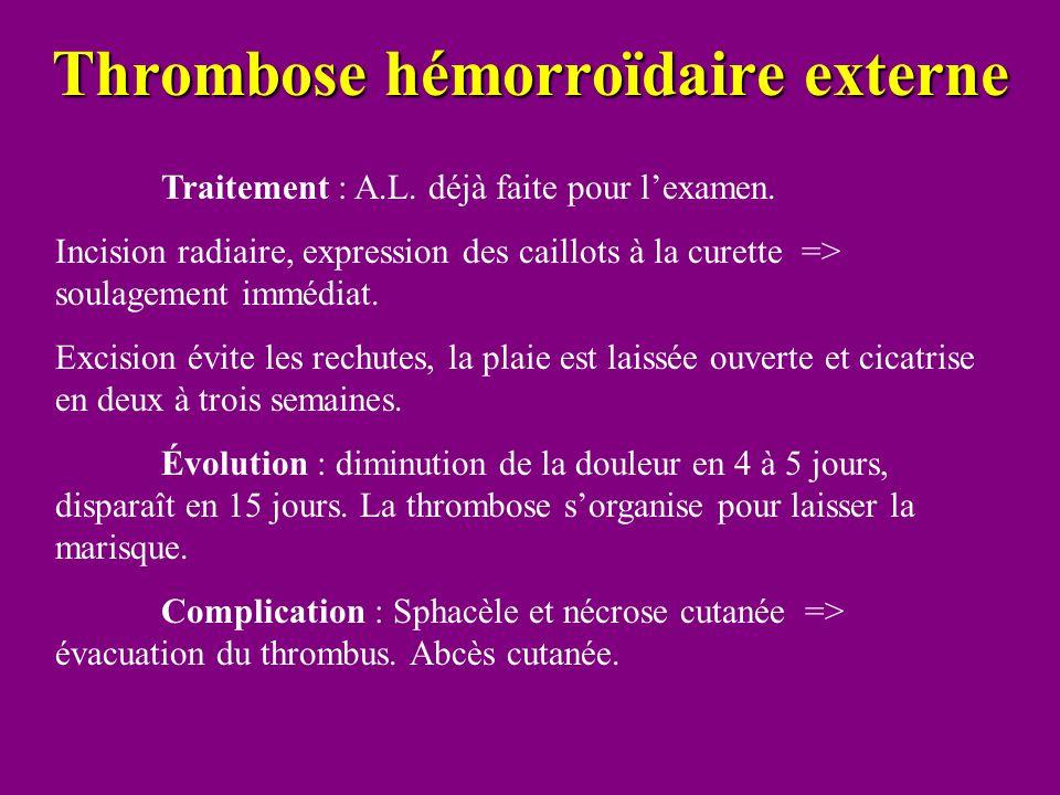 Thrombose hémorroïdaire externe Traitement : A.L. déjà faite pour l'examen. Incision radiaire, expression des caillots à la curette => soulagement imm