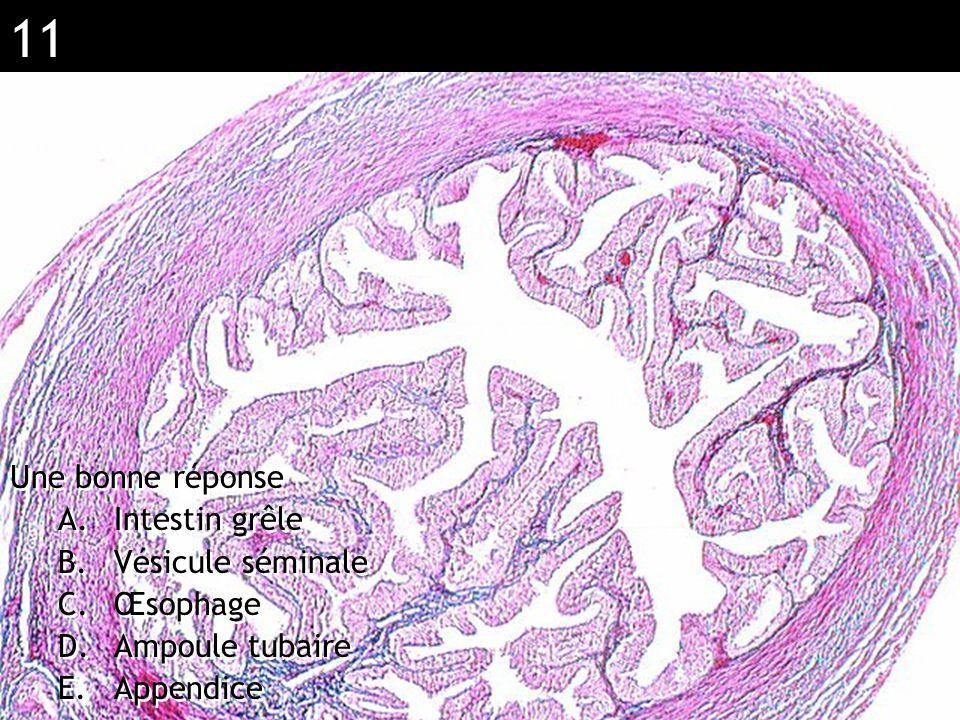11 Réponse D ( Ampoule tubaire) Une bonne réponse A.Intestin grêle B.Vésicule séminale C.Œsophage D.Ampoule tubaire E.Appendice Une bonne réponse A.In