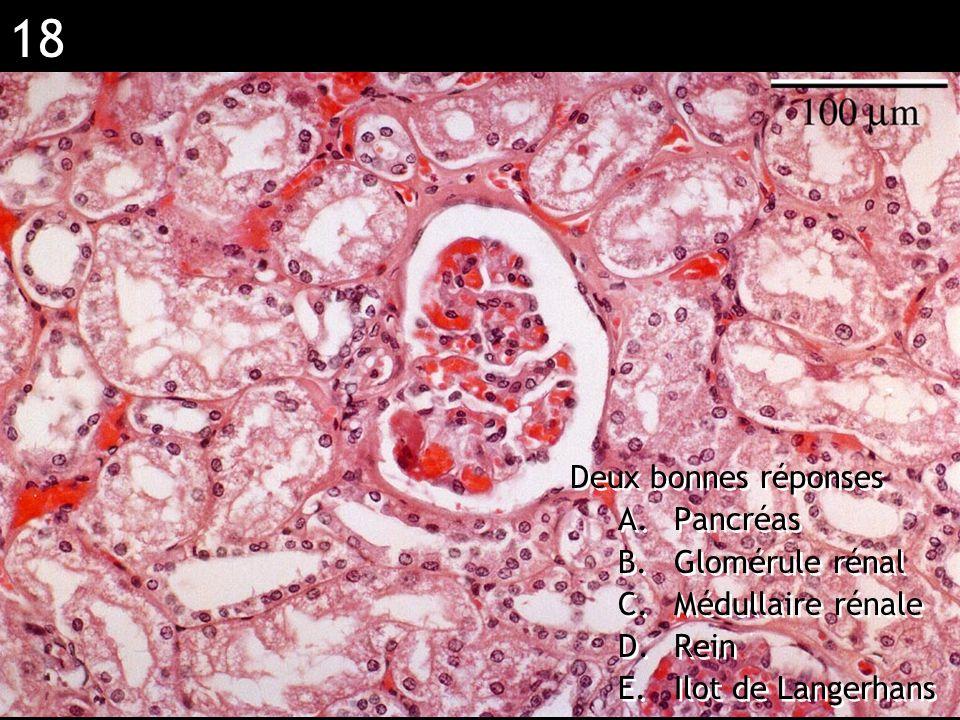 18 Réponse BD (rein) Deux bonnes réponses A.Pancréas B.Glomérule rénal C.Médullaire rénale D.Rein E.Ilot de Langerhans Deux bonnes réponses A.Pancréas
