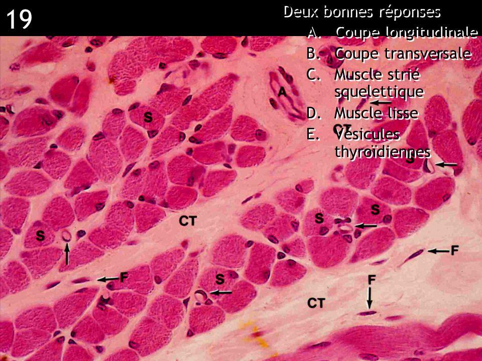 19 Réponse BC (muscle strié) Deux bonnes réponses A.Coupe longitudinale B.Coupe transversale C.Muscle strié squelettique D.Muscle lisse E.Vésicules th