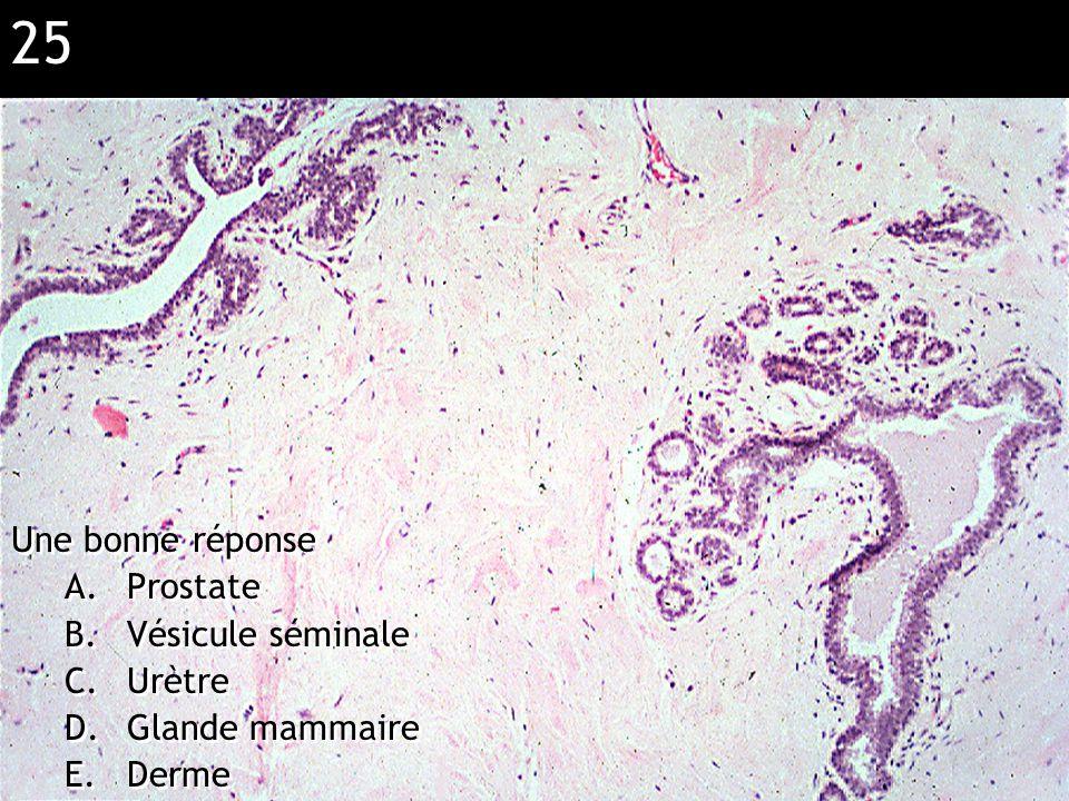 25 Réponse D (sein) Une bonne réponse A.Prostate B.Vésicule séminale C.Urètre D.Glande mammaire E.Derme Une bonne réponse A.Prostate B.Vésicule sémina