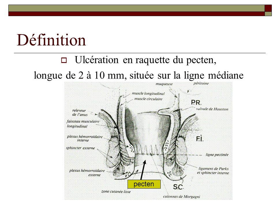 Définition  Ulcération en raquette du pecten, longue de 2 à 10 mm, située sur la ligne médiane pecten