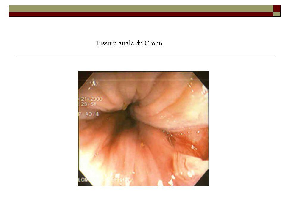 Fissure anale du Crohn