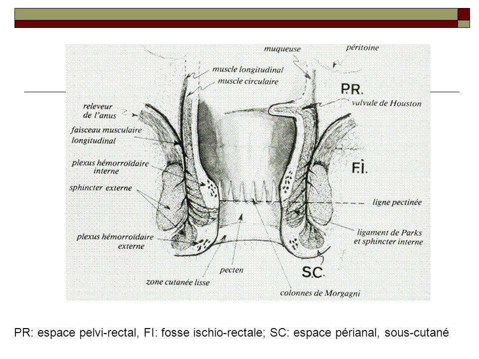 PR: espace pelvi-rectal, FI: fosse ischio-rectale; SC: espace périanal, sous-cutané