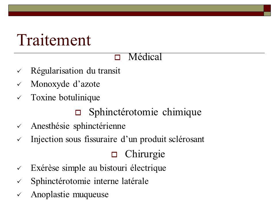 Traitement  Médical Régularisation du transit Monoxyde d'azote Toxine botulinique  Sphinctérotomie chimique Anesthésie sphinctérienne Injection sous