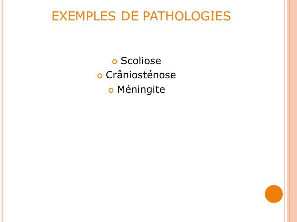EXEMPLES DE PATHOLOGIES Scoliose Crâniosténose Méningite