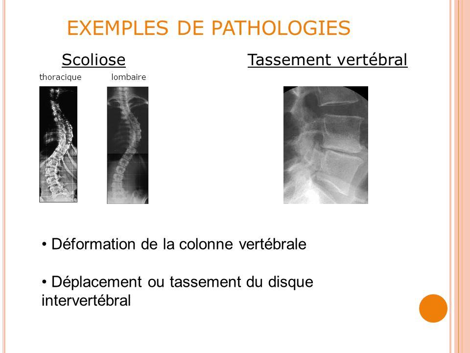 EXEMPLES DE PATHOLOGIES Scoliose Tassement vertébral thoracique lombaire Déformation de la colonne vertébrale Déplacement ou tassement du disque intervertébral