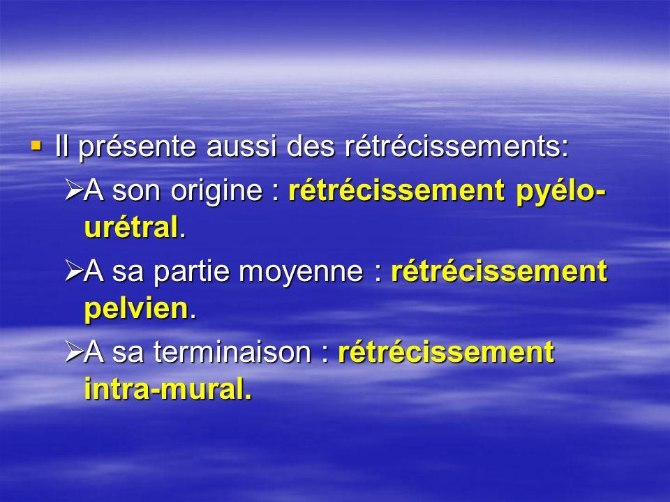  Il présente aussi des rétrécissements:  A son origine : rétrécissement pyélo- urétral.