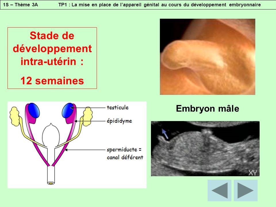 1S – Thème 3A TP1 : La mise en place de l'appareil génital au cours du développement embryonnaire Stade de développement intra-utérin : 15 semaines Embryon mâle