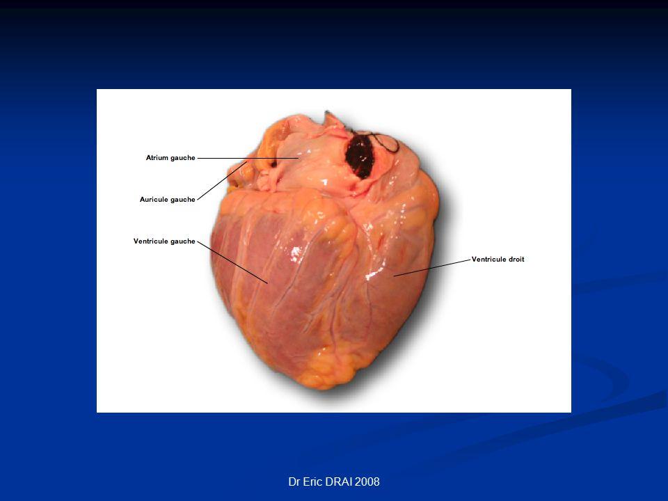 Dr Eric DRAI 2008 SYSTOLE Contraction des fibres musculaires Contraction des fibres musculaires Contraction des ventricules: 0,3 s Contraction des ventricules: 0,3 s Ejection du sang dans l'Aorte (VG) et Artere Pulmonaire (VD) Ejection du sang dans l'Aorte (VG) et Artere Pulmonaire (VD) La contraction des oreillettes 0,1 s précède la contraction ventriculaire La contraction des oreillettes 0,1 s précède la contraction ventriculaire