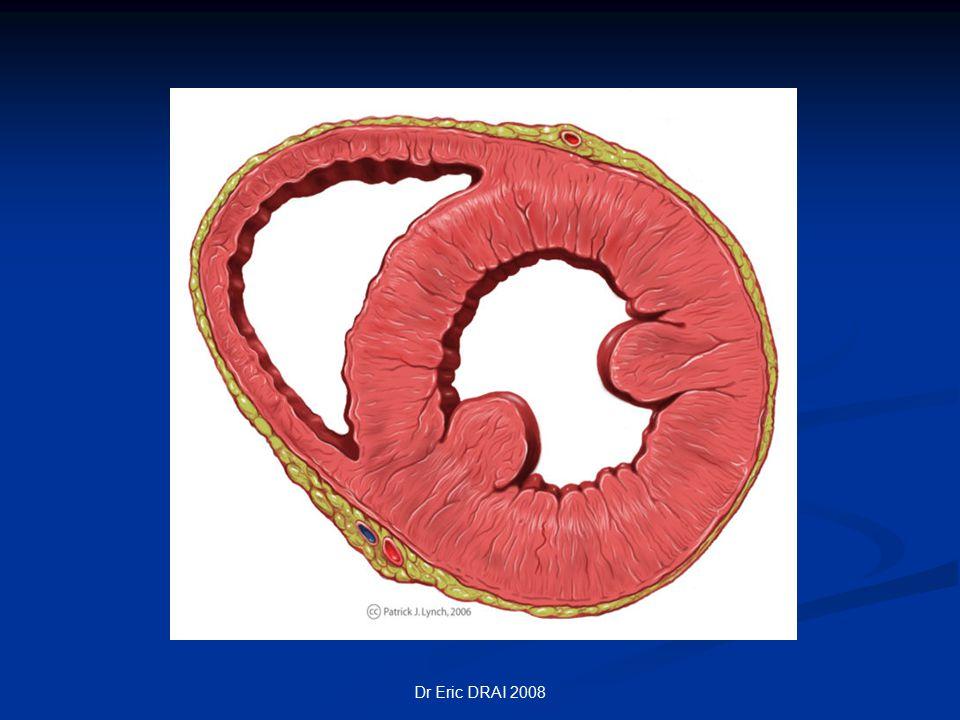 Dr Eric DRAI 2008 Débit cardiaque Quantité de sang éjectée par chaque ventricule en une minute Quantité de sang éjectée par chaque ventricule en une minute Fréquence cardiaque x débit systolique Fréquence cardiaque x débit systolique DC(ml/mn)= FC x VS