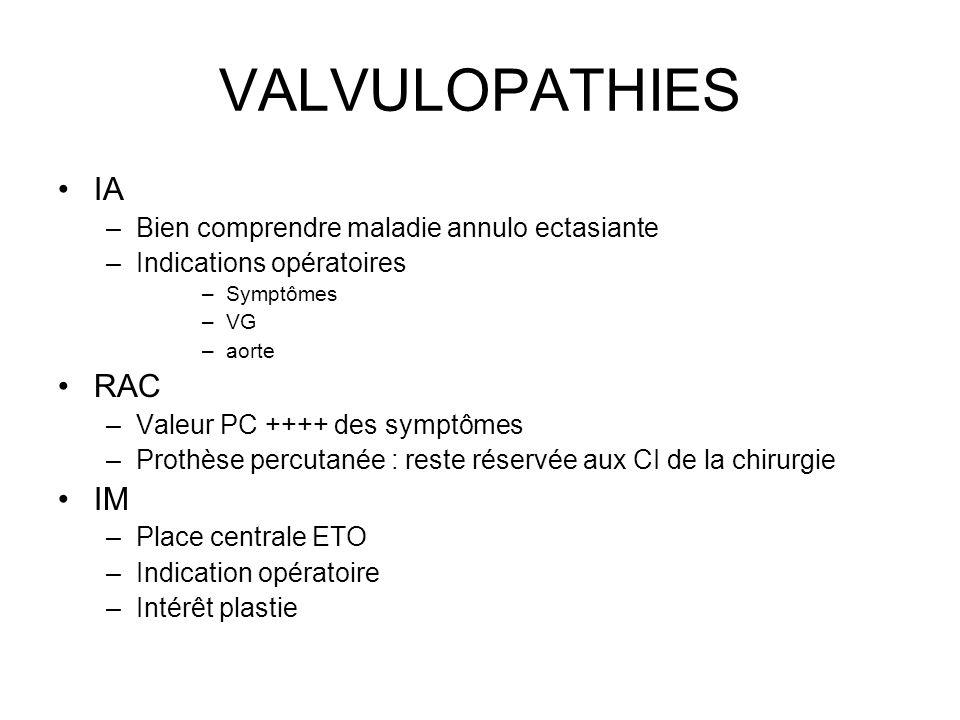 VALVULOPATHIES IA –Bien comprendre maladie annulo ectasiante –Indications opératoires –Symptômes –VG –aorte RAC –Valeur PC ++++ des symptômes –Prothèse percutanée : reste réservée aux CI de la chirurgie IM –Place centrale ETO –Indication opératoire –Intérêt plastie