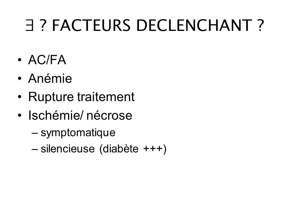 ∃ .FACTEURS DECLENCHANT .