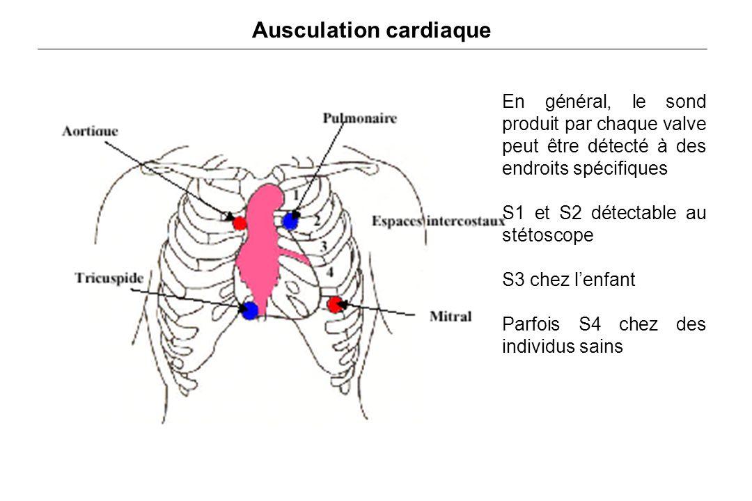 Ausculation cardiaque En général, le sond produit par chaque valve peut être détecté à des endroits spécifiques S1 et S2 détectable au stétoscope S3 chez l'enfant Parfois S4 chez des individus sains