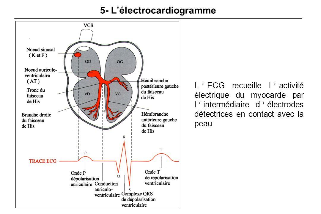 5- L'électrocardiogramme L'ECG recueille l'activité électrique du myocarde par l'intermédiaire d'électrodes détectrices en contact avec la peau