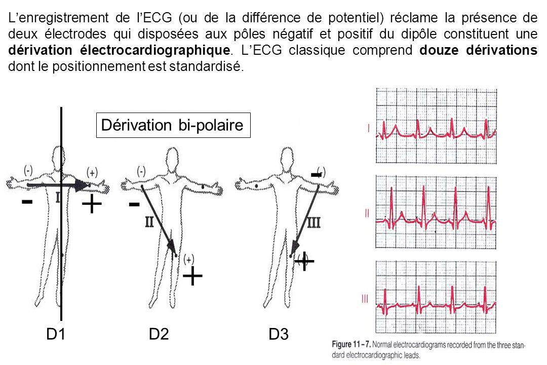 L'enregistrement de l'ECG (ou de la différence de potentiel) réclame la présence de deux électrodes qui disposées aux pôles négatif et positif du dipôle constituent une dérivation électrocardiographique.