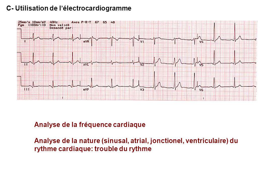 C- Utilisation de l'électrocardiogramme Analyse de la fréquence cardiaque Analyse de la nature (sinusal, atrial, jonctionel, ventriculaire) du rythme cardiaque: trouble du rythme