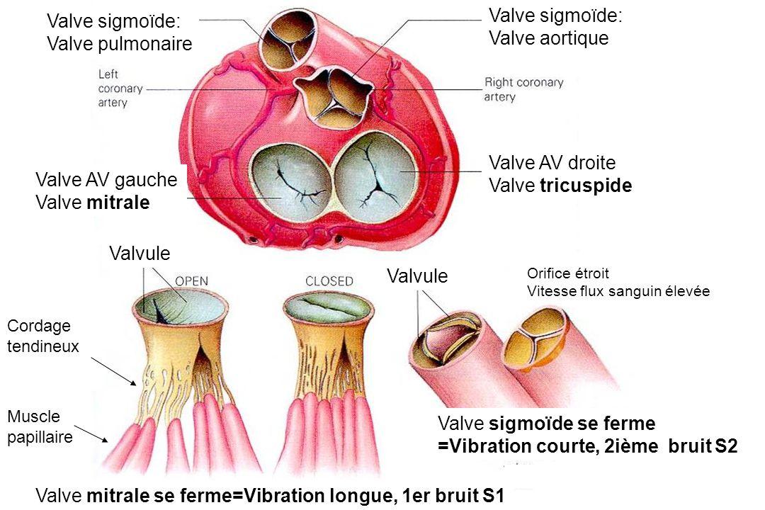Valve AV droite Valve tricuspide Valve AV gauche Valve mitrale Valve sigmoïde: Valve aortique Valve sigmoïde: Valve pulmonaire Valvule Cordage tendineux Muscle papillaire Valvule Valve mitrale se ferme=Vibration longue, 1er bruit S1 Orifice étroit Vitesse flux sanguin élevée Valve sigmoïde se ferme =Vibration courte, 2ième bruit S2