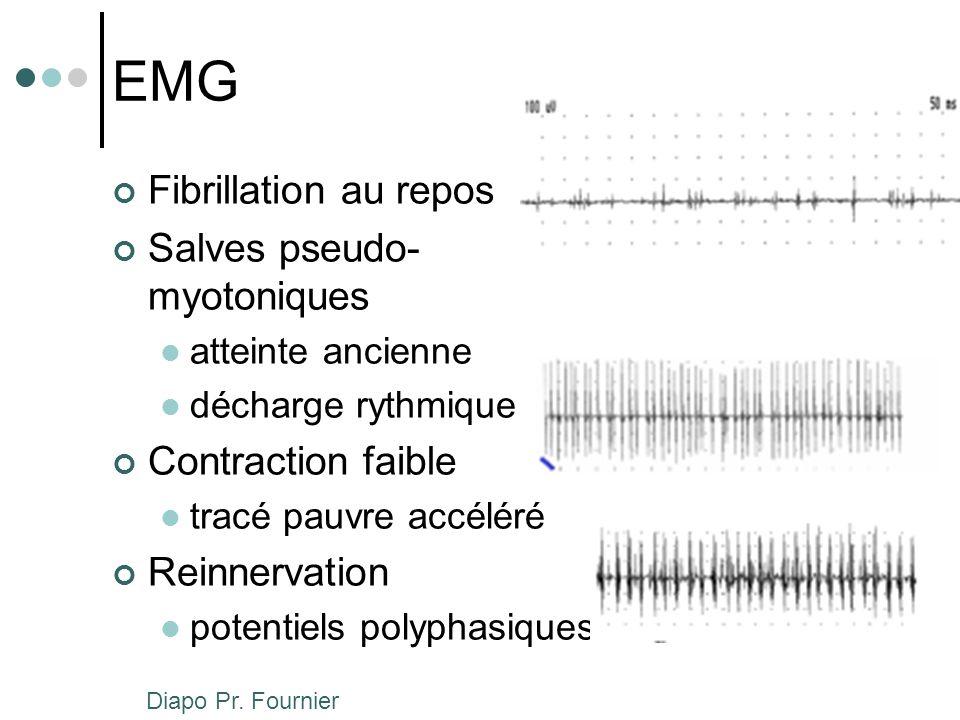 EMG Fibrillation au repos Salves pseudo- myotoniques atteinte ancienne décharge rythmique Contraction faible tracé pauvre accéléré Reinnervation poten