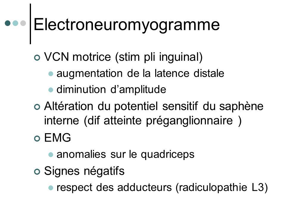 Electroneuromyogramme VCN motrice (stim pli inguinal) augmentation de la latence distale diminution d'amplitude Altération du potentiel sensitif du sa