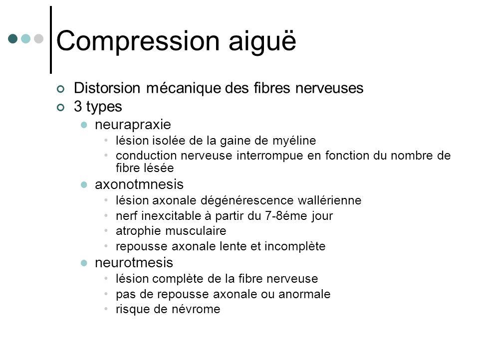 Compression aiguë Distorsion mécanique des fibres nerveuses 3 types neurapraxie lésion isolée de la gaine de myéline conduction nerveuse interrompue e