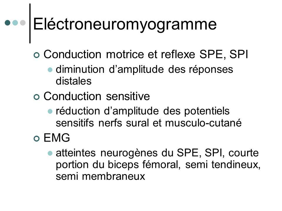 Eléctroneuromyogramme Conduction motrice et reflexe SPE, SPI diminution d'amplitude des réponses distales Conduction sensitive réduction d'amplitude d