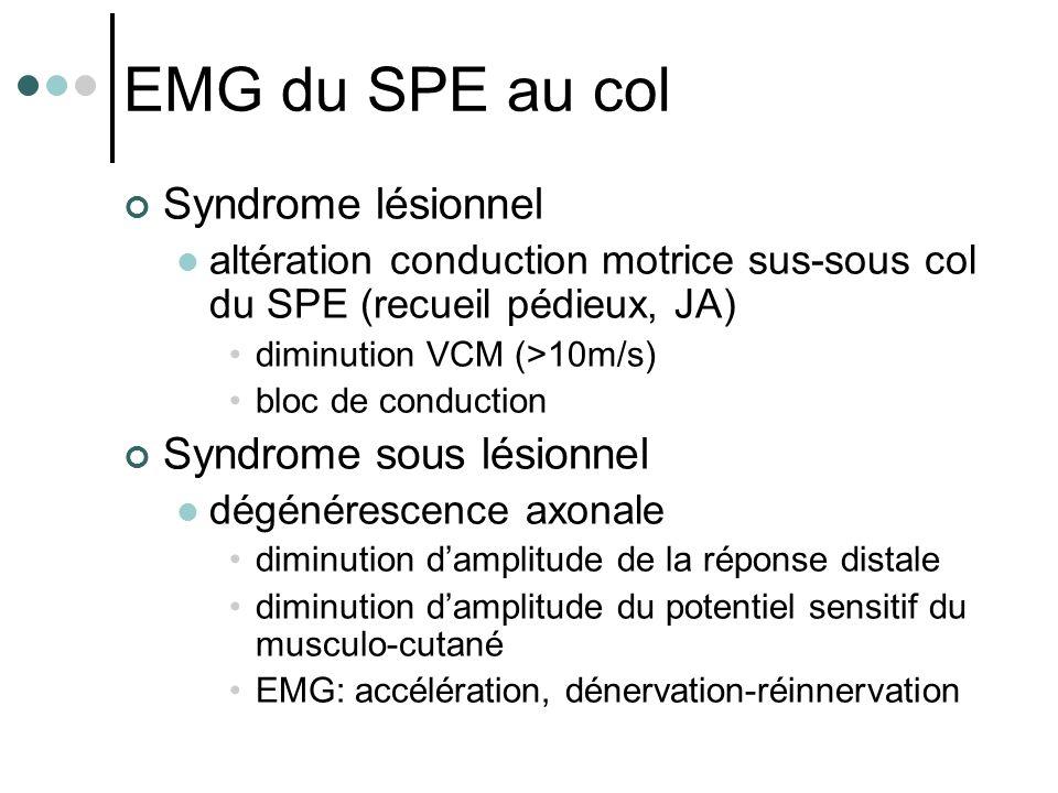 EMG du SPE au col Syndrome lésionnel altération conduction motrice sus-sous col du SPE (recueil pédieux, JA) diminution VCM (>10m/s) bloc de conductio