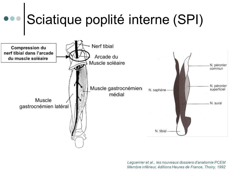 Sciatique poplité interne (SPI)