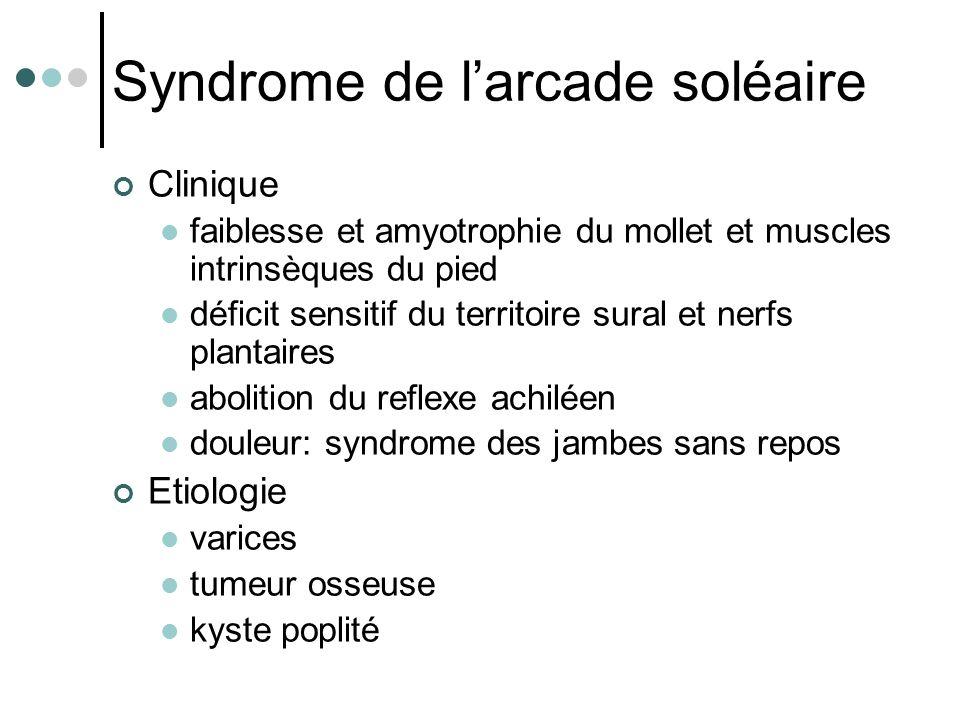 Syndrome de l'arcade soléaire Clinique faiblesse et amyotrophie du mollet et muscles intrinsèques du pied déficit sensitif du territoire sural et nerf