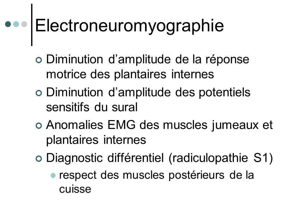 Electroneuromyographie Diminution d'amplitude de la réponse motrice des plantaires internes Diminution d'amplitude des potentiels sensitifs du sural A