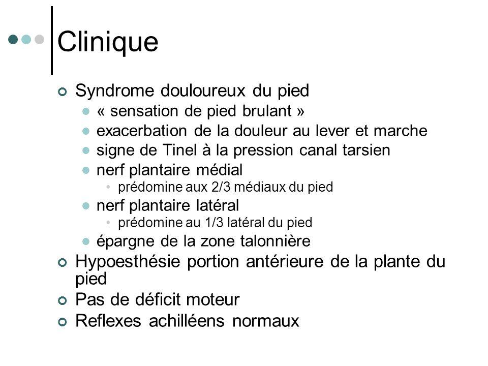 Clinique Syndrome douloureux du pied « sensation de pied brulant » exacerbation de la douleur au lever et marche signe de Tinel à la pression canal ta