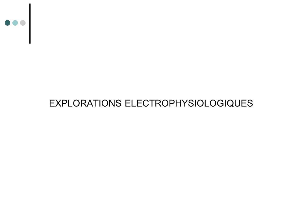 Electroneuromyographie Objectif examen fondamental diagnostic localiser la lésion responsable pronostic évaluer l'intensité de la lésion stimulo-détection suivi Electromyogramme dénervation des muscles atteints activité spontanée (dégénérescence axonale) potentiel de ré-innervation