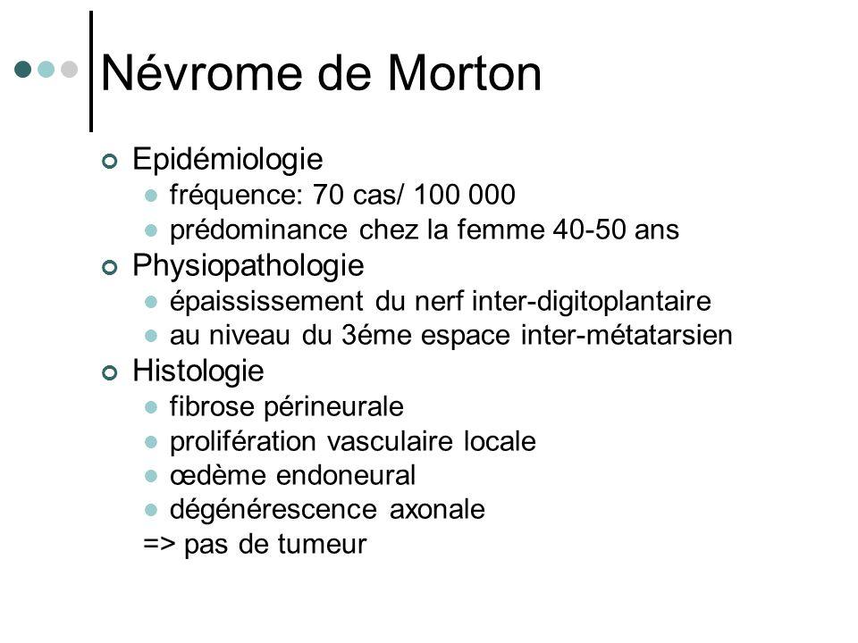Névrome de Morton Epidémiologie fréquence: 70 cas/ 100 000 prédominance chez la femme 40-50 ans Physiopathologie épaississement du nerf inter-digitopl