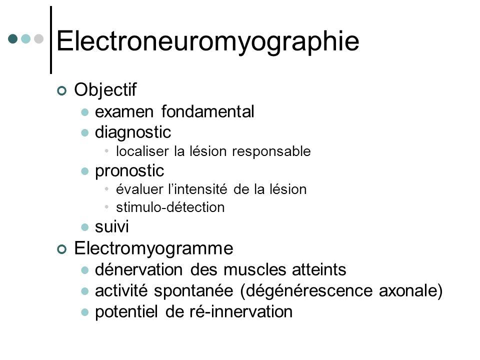 Electroneuromyographie Objectif examen fondamental diagnostic localiser la lésion responsable pronostic évaluer l'intensité de la lésion stimulo-détec