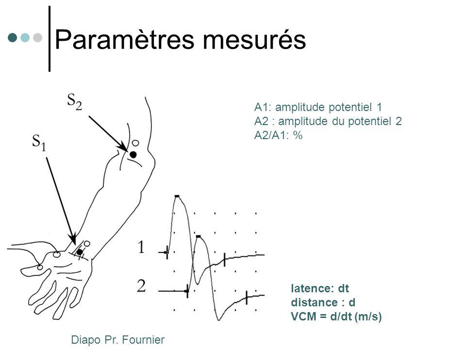 Paramètres mesurés A1: amplitude potentiel 1 A2 : amplitude du potentiel 2 A2/A1: % latence: dt distance : d VCM = d/dt (m/s) Diapo Pr. Fournier