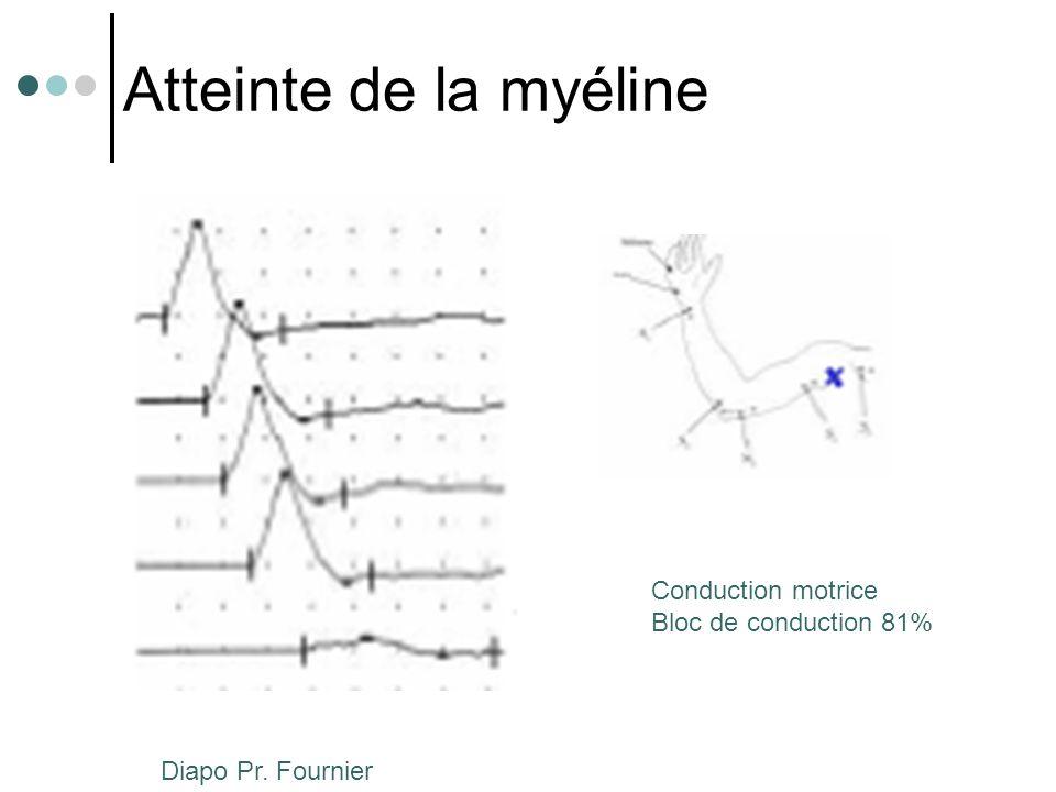 Perte axonale Conduction motrice Réduction d'amplitude 77% Diapo Pr. Fournier