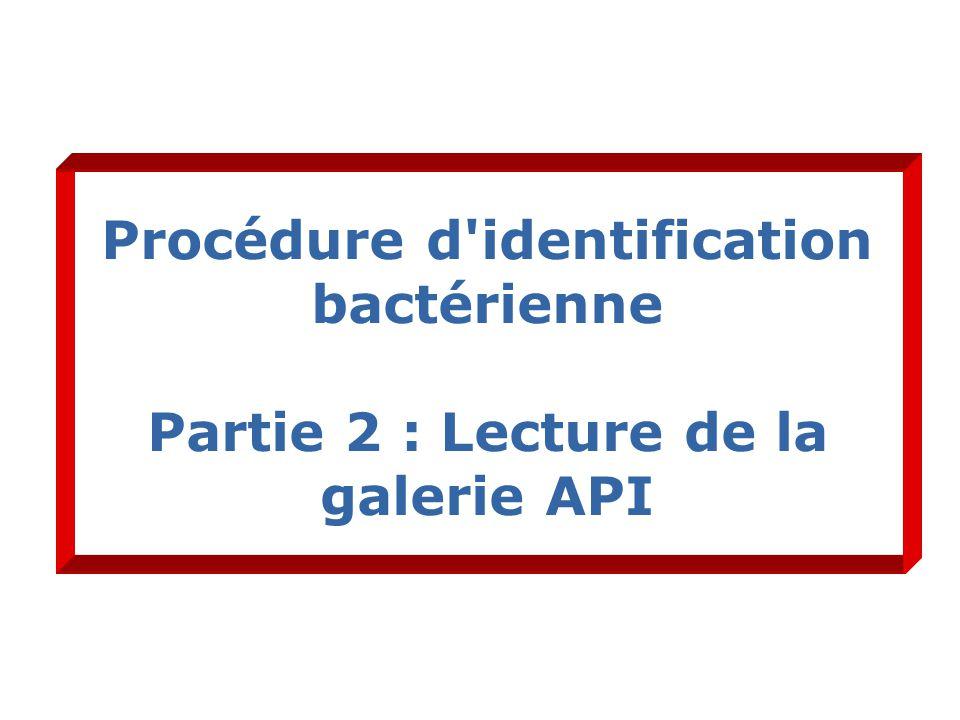 Procédure d identification bactérienne Partie 2 : Lecture de la galerie API