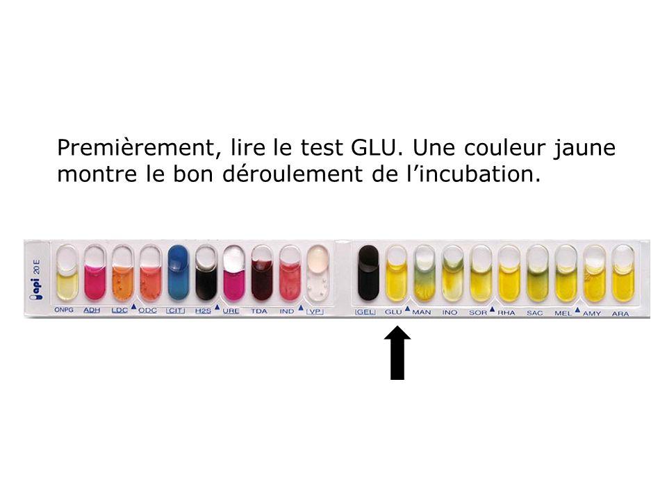 Premièrement, lire le test GLU. Une couleur jaune montre le bon déroulement de l'incubation.