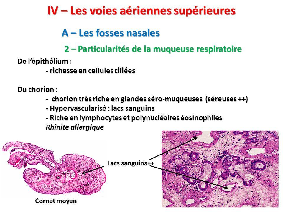 IV – Les voies aériennes supérieures A – Les fosses nasales 2 – Particularités de la muqueuse respiratoire De l'épithélium : - richesse en cellules ciliées Du chorion : - chorion très riche en glandes séro-muqueuses (séreuses ++) - Hypervascularisé : lacs sanguins - Riche en lymphocytes et polynucléaires éosinophiles Rhinite allergique Lacs sanguins++ Cornet moyen