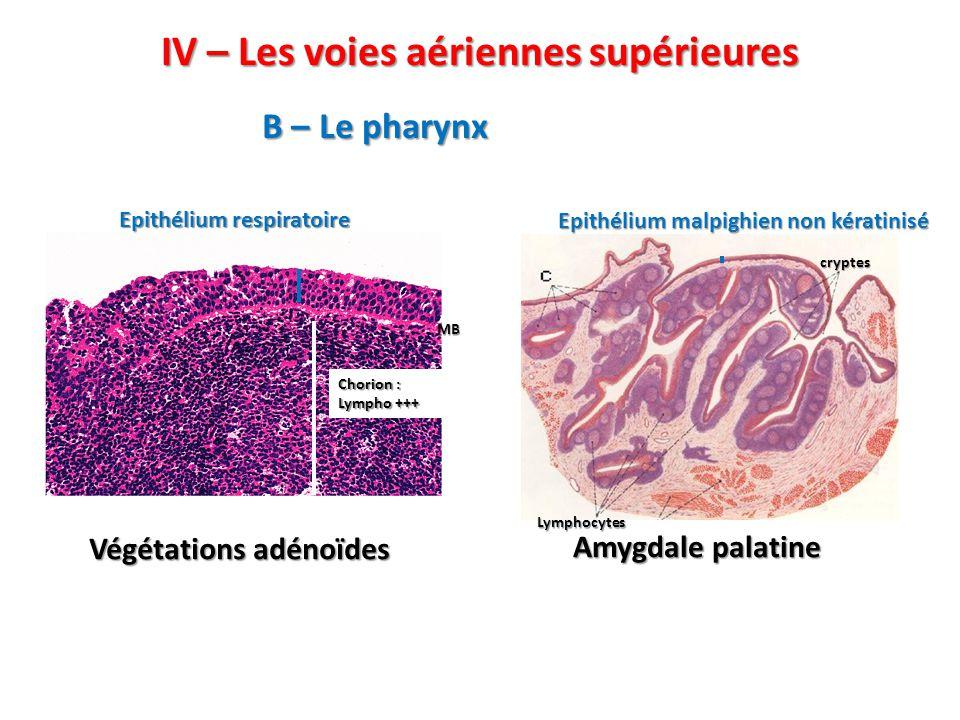 IV – Les voies aériennes supérieures B – Le pharynx Végétations adénoïdes Amygdale palatine Epithélium respiratoire MB Chorion : Lympho +++ Epithélium malpighien non kératinisé cryptes Lymphocytes