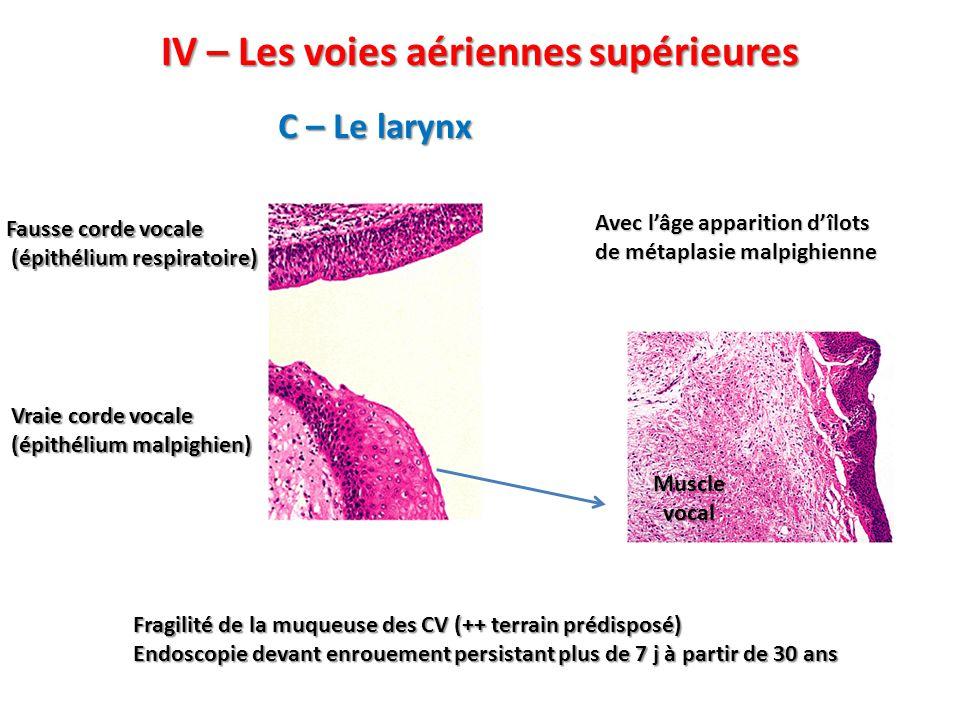 IV – Les voies aériennes supérieures C – Le larynx Vraie corde vocale (épithélium malpighien) Fausse corde vocale (épithélium respiratoire) (épithélium respiratoire) Muscle vocal Avec l'âge apparition d'îlots de métaplasie malpighienne Fragilité de la muqueuse des CV (++ terrain prédisposé) Endoscopie devant enrouement persistant plus de 7 j à partir de 30 ans