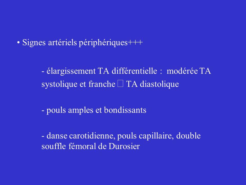Signes artériels périphériques+++ - élargissement TA différentielle :  modérée TA systolique et franche  TA diastolique - pouls amples et bondissants - danse carotidienne, pouls capillaire, double souffle fémoral de Durosier