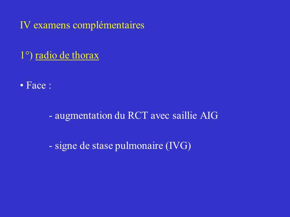 IV examens complémentaires 1°) radio de thorax Face : - augmentation du RCT avec saillie AIG - signe de stase pulmonaire (IVG)