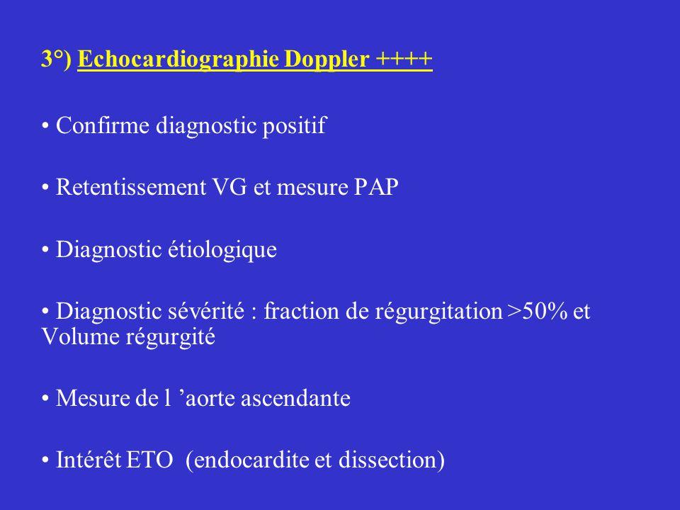 3°) Echocardiographie Doppler ++++ Confirme diagnostic positif Retentissement VG et mesure PAP Diagnostic étiologique Diagnostic sévérité : fraction de régurgitation >50% et Volume régurgité Mesure de l 'aorte ascendante Intérêt ETO (endocardite et dissection)