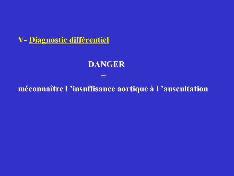V- Diagnostic différentiel DANGER = méconnaître l 'insuffisance aortique à l 'auscultation