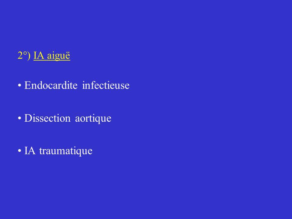 2°) IA aiguë Endocardite infectieuse Dissection aortique IA traumatique