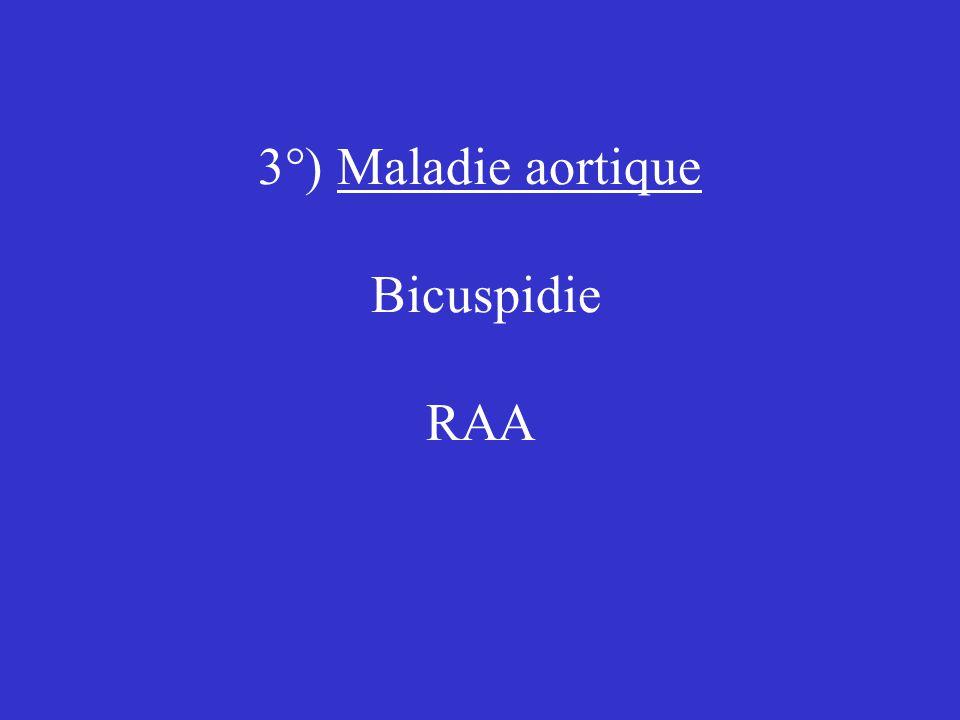3°) Maladie aortique Bicuspidie RAA
