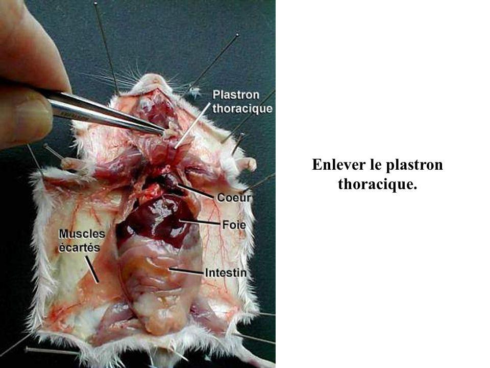 Enlever le plastron thoracique.