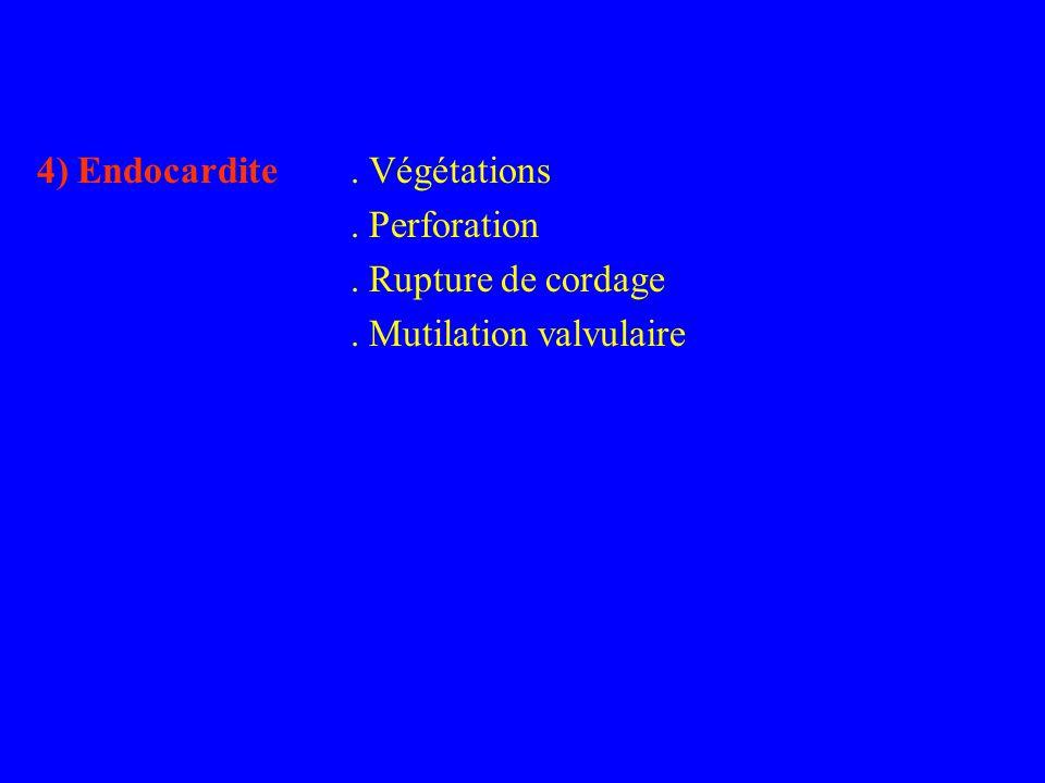 4) Endocardite. Végétations. Perforation. Rupture de cordage. Mutilation valvulaire